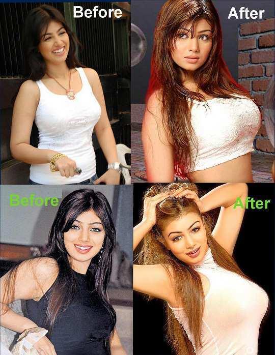 ayesha-takiya-before-after-surgery1