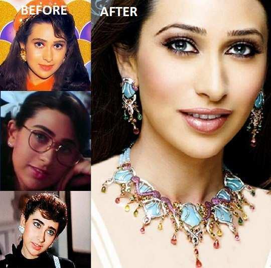 karishma-kapoor-before-after-surgery-pics