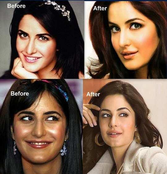 Katrina Kaif Before And After Nose Natural Beauties, No M...