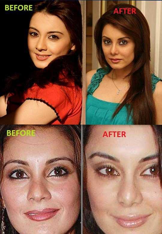 minisha-lamba-before-after-surgery-pics