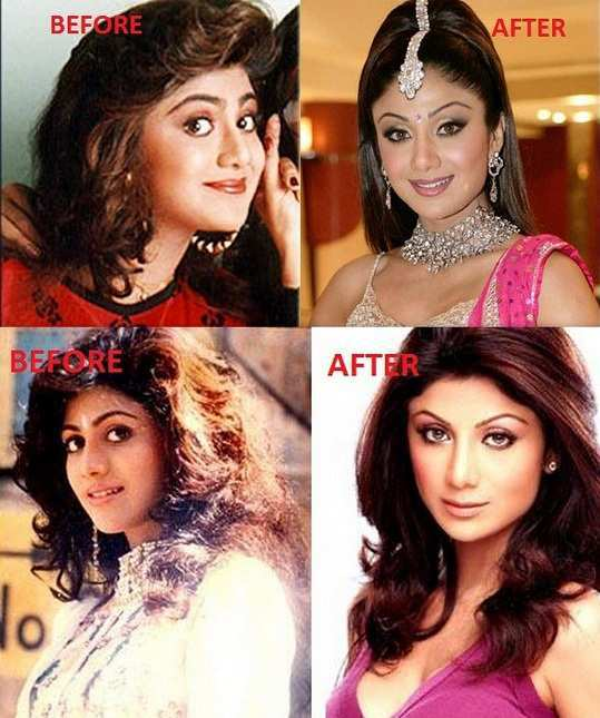 shilpa-shetty-before-after-surgery-images