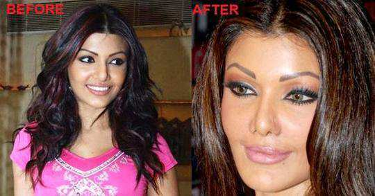 Top 10 Bollywood Celebrity Plastic Surgery Before and After