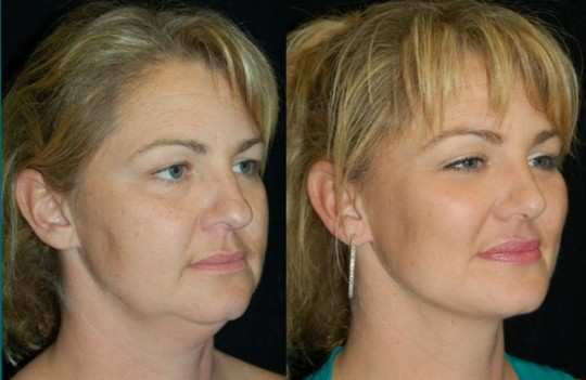 Buccal Fat Removal Surgery