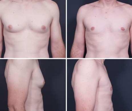 Gynecomastia-resection