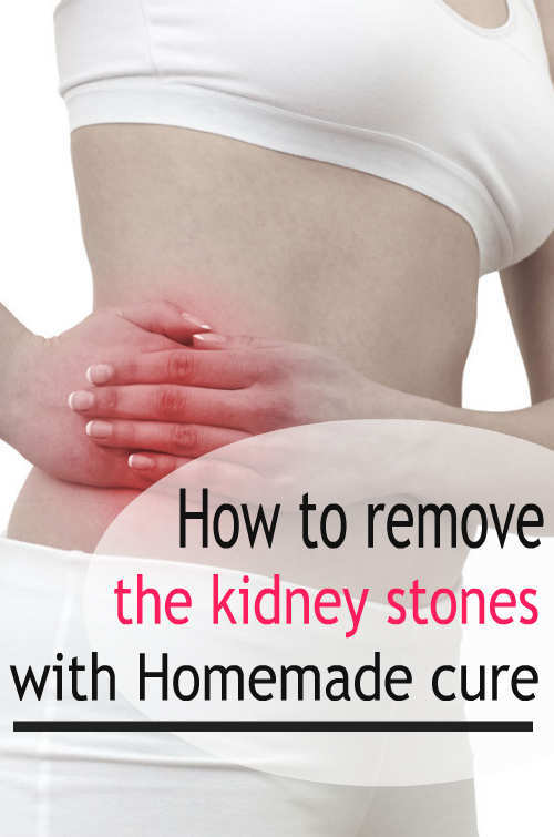 How To Remove The Kidney Stones With Homemade Cure