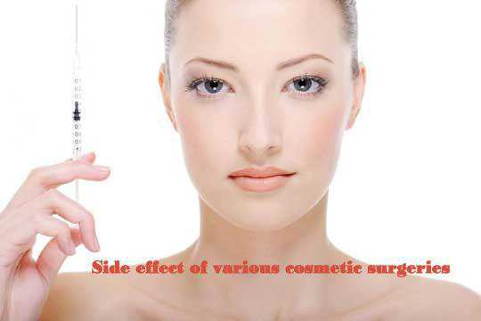 Side Effects of Various Cosmetic Surgeries1