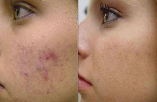 baking-soda-to-heal-acne-scars