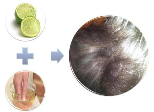home-remedies-for-dandruff-4