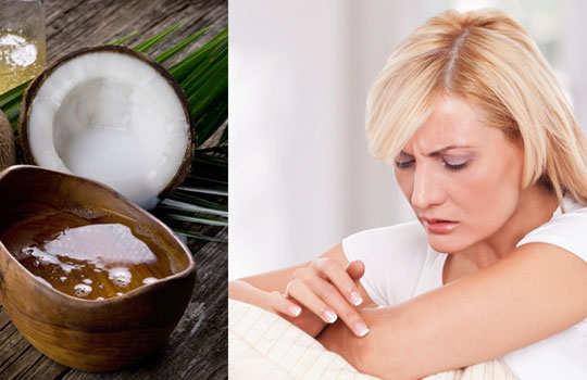 coconut-oil-benifits-skin-care-4