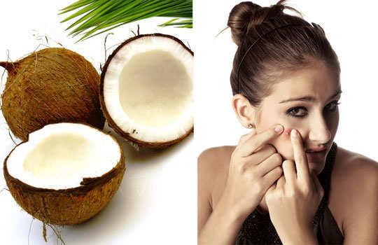 coconut-oil-benifits-skin-care-5