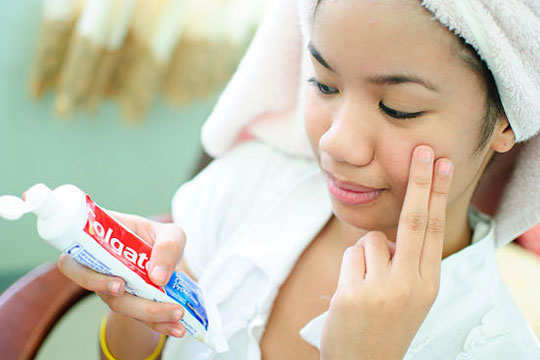 How to dry up a pimple fast consider