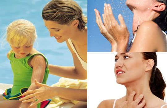 heat-rashes-home-remedies-tips