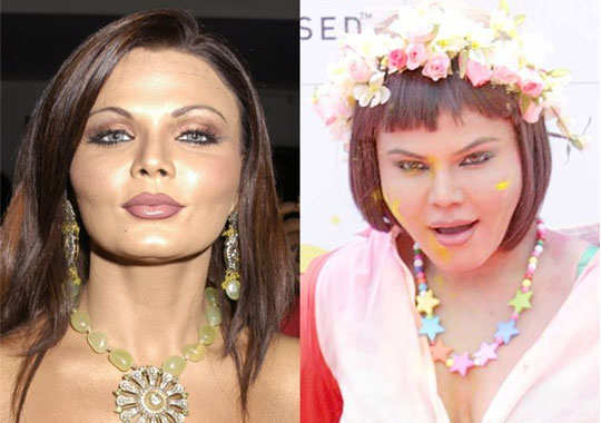 top 10 plastic surgery disasters from koena mitra to pamela anderson