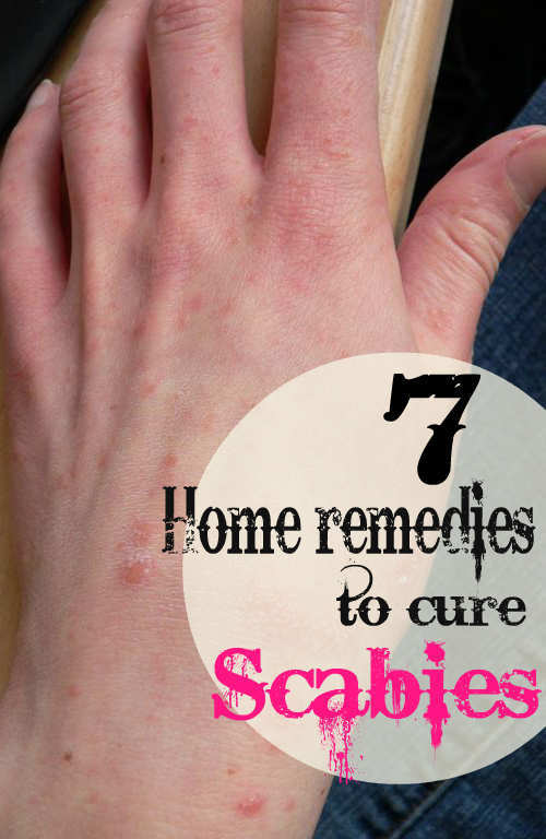 7 Effective Home Remedies to Cure Scabies