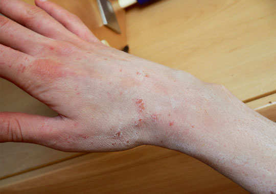 7 effective home remedies to cure scabies. Black Bedroom Furniture Sets. Home Design Ideas