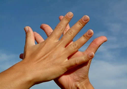 sweaty-palms-hands-home-remedies-ft