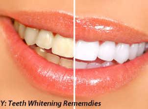 teeth-whitening-home-remedies-diy-ft