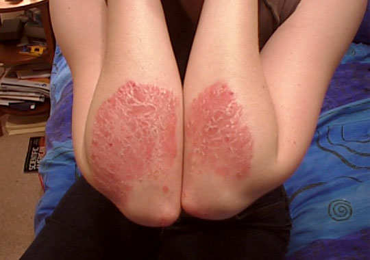 Psoriasis-home-remedies-main