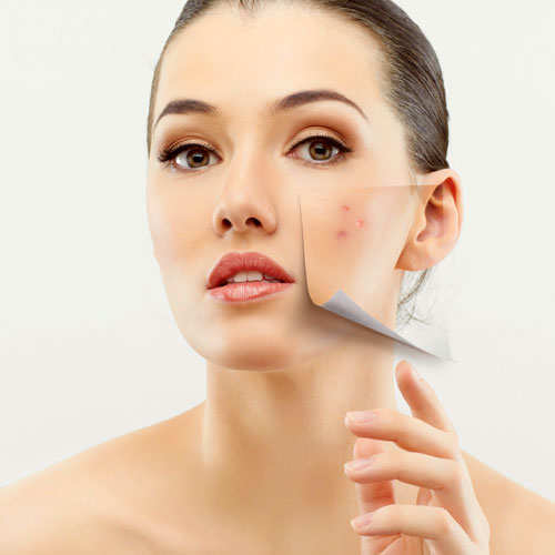 skin-care-myths-acne-prone-skin