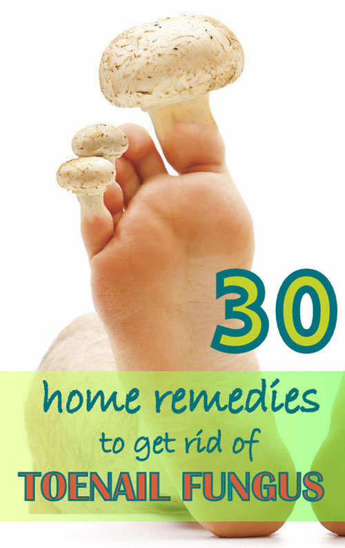 What Gets Rid Of Toenail Fungus Naturally