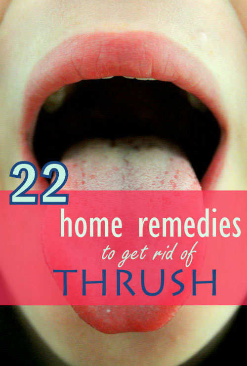 How Can You Get Rid Of Oral Thrush Naturally