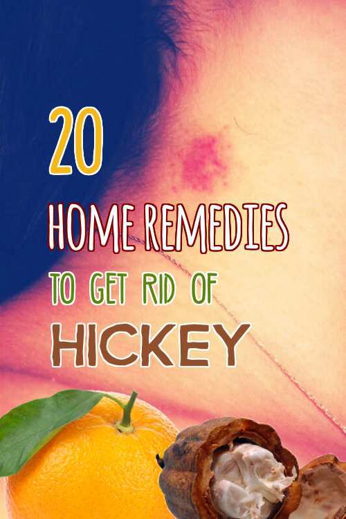 home-remedies-to-get-rid-of-hickey