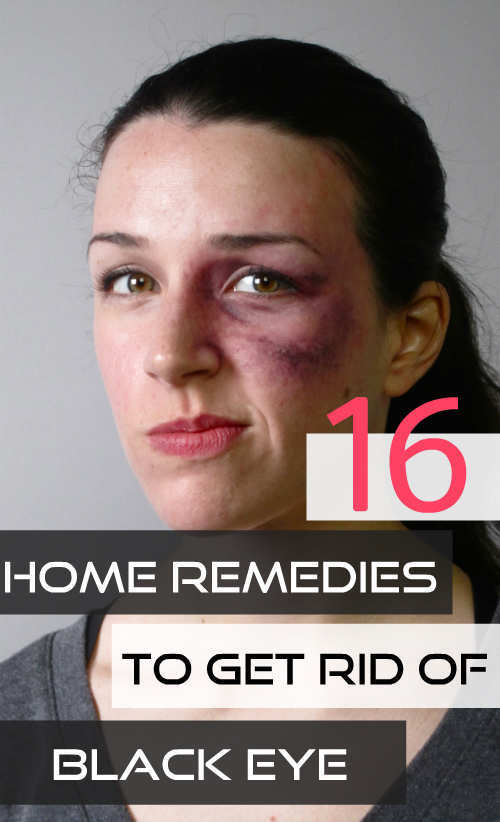 home-remedies-to-get-rid-of-black-eye